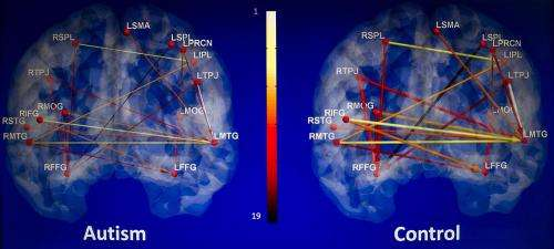 Autism Shares Brain Signature With >> Research Finds Brain Scans May Aid In Diagnosis Of Autism