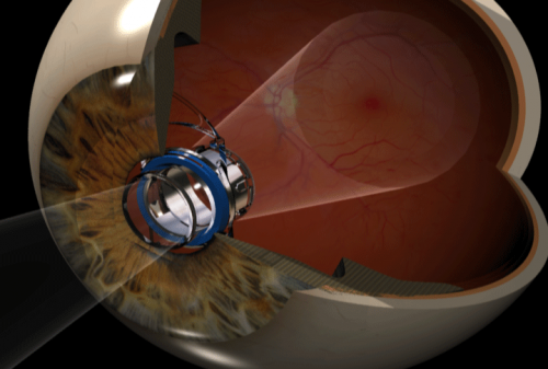 VCU Medical Center first in Virginia to implant telescope for macular degeneration