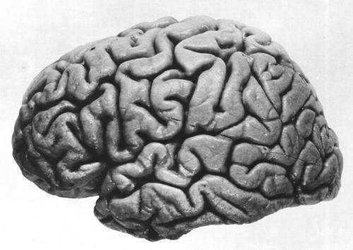 Left hemisphere of brain, lateral view