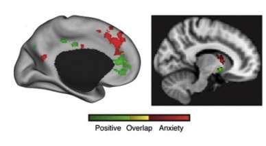 Brain's dynamic duel underlies win-win choices