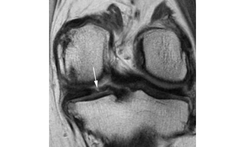 Common knee surgery may lead to arthritis and cartilage loss