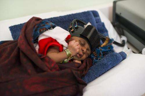 First brain images of African infants enable research into cognitive effects of nutrition