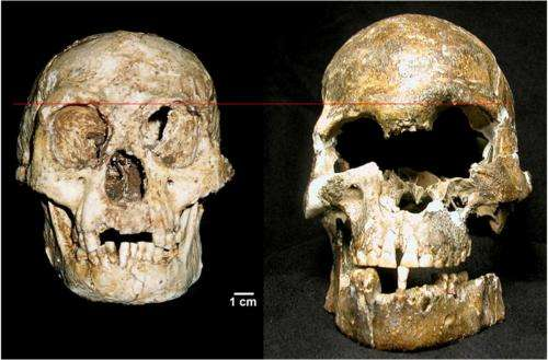 Flores bones show features of Down syndrome, not a new 'hobbit' human