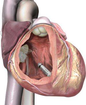 Heart expert sees pacemaker as cardiac management milestone