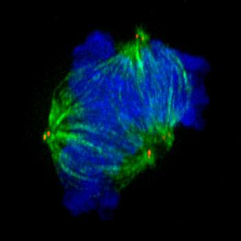 Impaired cell division leads to neuronal disorder