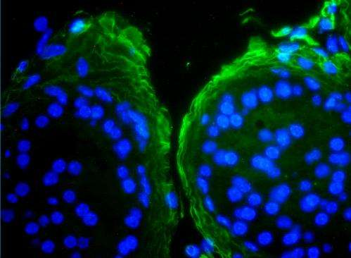 'Jekyll and Hyde' molecule is key to new personalised medicine for prostate cancer
