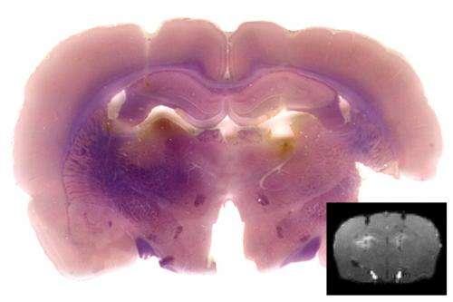 MRI reveals genetic activity