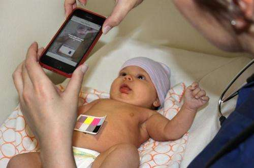 New smartphone app can detect newborn jaundice in minutes