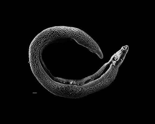 Prehistoric parasite egg suggests early disease spread through human technology
