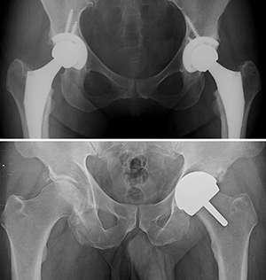 Some patients may benefit from hip resurfacing over replacement
