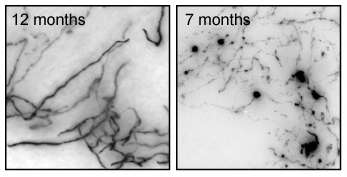 Tangled path of Alzheimer's-linked brain cells mapped in mice