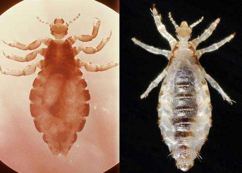 1 species, 2 outcomes: Team seeks source of body louse pathology