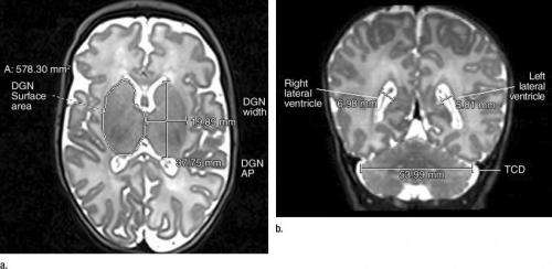 MRI shows brain abnormalities in late preterm infants