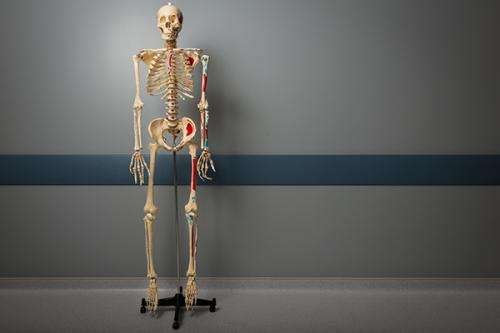 Researcher seeks help for those with osteoporosis
