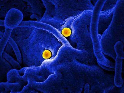 NIH scientists establish new monkey model of severe MERS-CoV disease