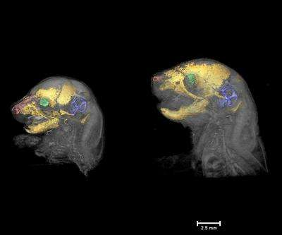3-D imaging sheds light on Apert syndrome development