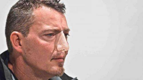 3D printed nose wins design award