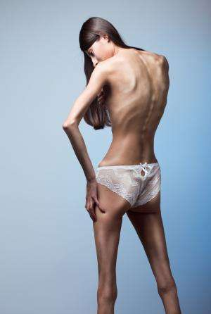 Anorexia Fueled by Pride About Weight Loss