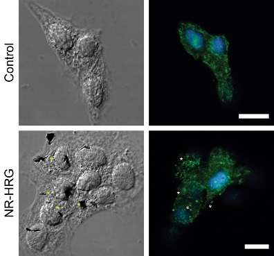 Arming nanoparticles for cancer diagnosis and treatment