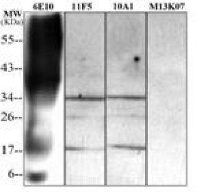 A single-domain antibody that specifically recognizes amyloid-beta 42 oligomers
