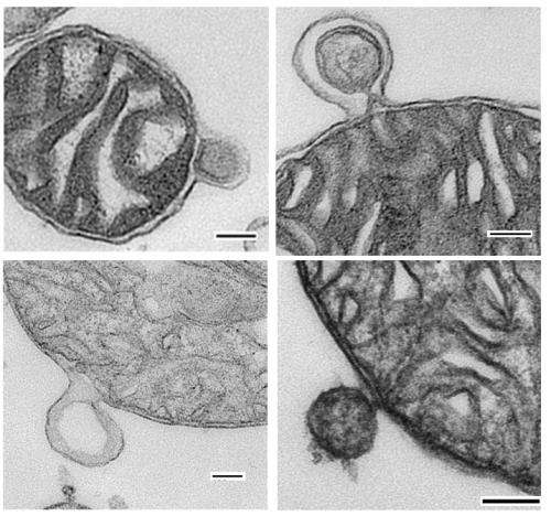 Better living through mitochondrial derived vesicles