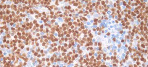 Big data to help blood cancer patients