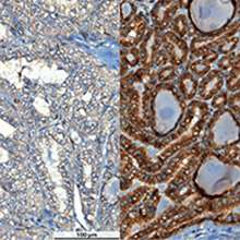 Biomarker reveals cause of thyroid carcinoma