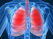 Breath test may detect signs of lung cancer: study