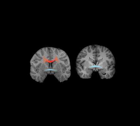 Caltech neuroscientists find link between agenesis of the corpus callosum and autism