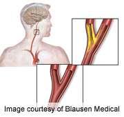 CAS, CEA equally effective for long-term stroke prevention