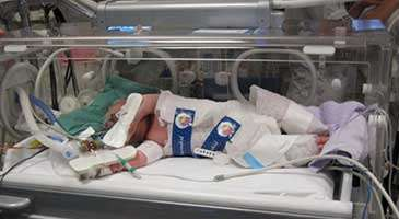 Cooling treatment improves survival without brain damage in later childhood