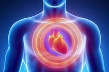 Coronary calcium scores may help predict risk of death in patients without family history of heart disease