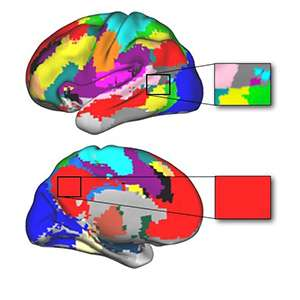 Damage to brain 'hubs' causes extensive impairment