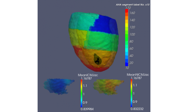 Diffeomorphometry and geodesic positioning systems for human anatomy