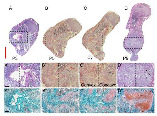 Discovery of how newborn mice repair bone fractures could improve treatments
