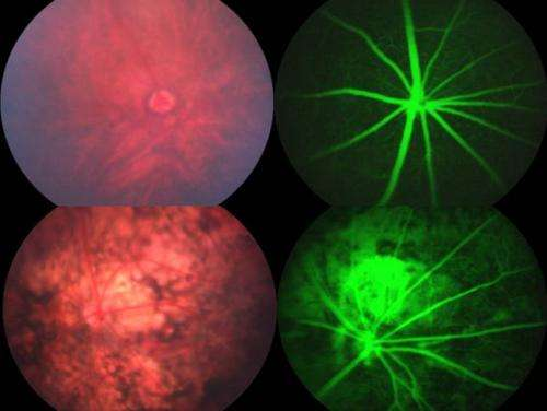 Fundoscopy of healty and disease retinal pigment epithelium