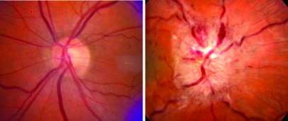 Glaucoma drug helps women with blinding disorder linked to obesity