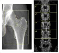 Hormone treatment restores bone density for young women with menopause-like condition