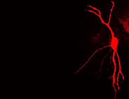 How nerve cells flexibly adapt to acoustic signals