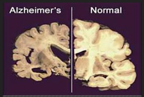 Inherited Alzheimer's damage greater decades before symptoms appear