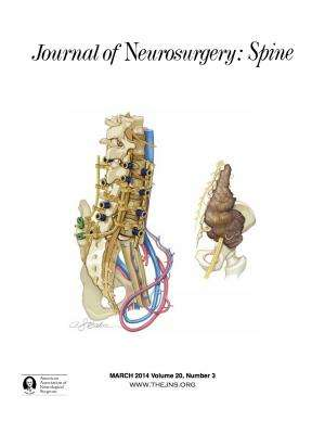 Innovative 'False pedicle' surgery allows for advanced spinal/pelvic reconstruction