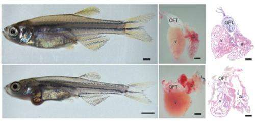 Zebrafish model helps identify compound that reverses a lethal form of cardiomyopathy