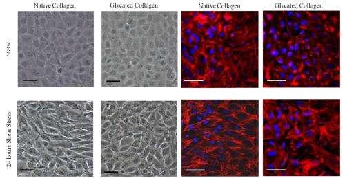 Mechanical engineer studies flow of blood vessels related to diabetes and resulting heart disease