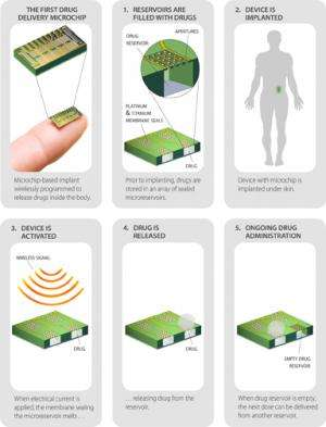 MicroCHIPS develops contraceptive implant