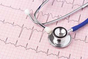 Minorities face disparities in treatment and outcomes of atrial fibrillation