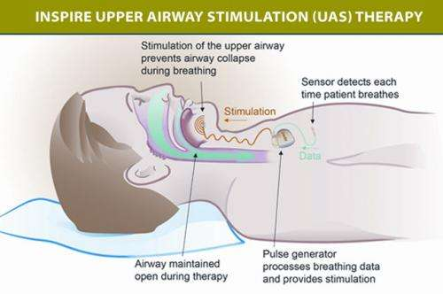 New device can reduce sleep apnea episodes by 70 percent, study shows