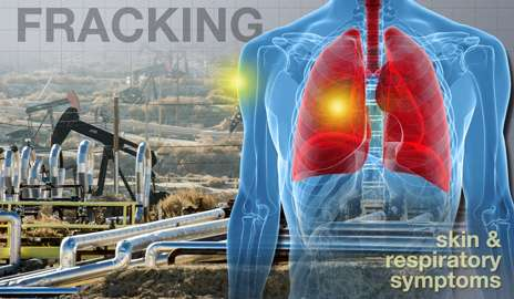 More health symptoms reported near 'fracking' natural gas extraction