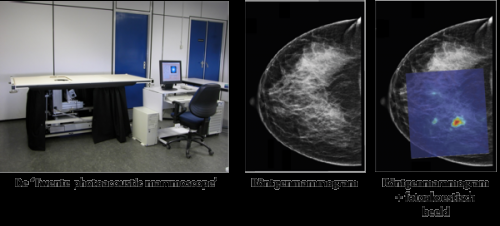 New breast cancer imaging method promising