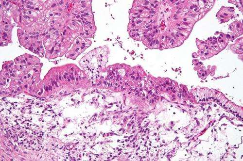 AI can predict survival of ovarian cancer patients