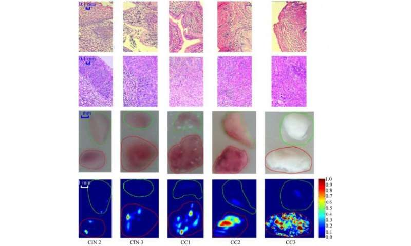 Potential new tool for cervical cancer detection and diagnosis